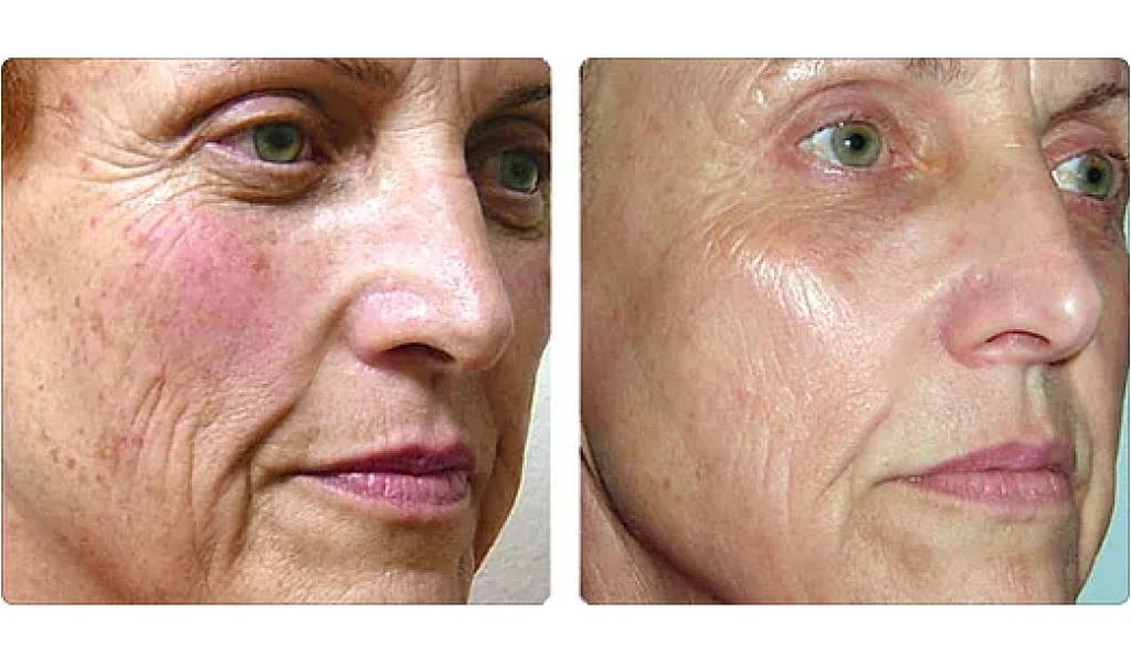 Antes y Después Rejuvenecimiento Facial con Láser Harmony